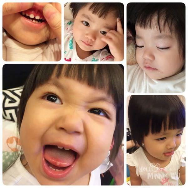 疱疹性牙齦口腔炎